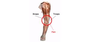 Biceps-Strain