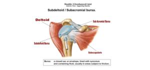 Subdeltoid Bursitis