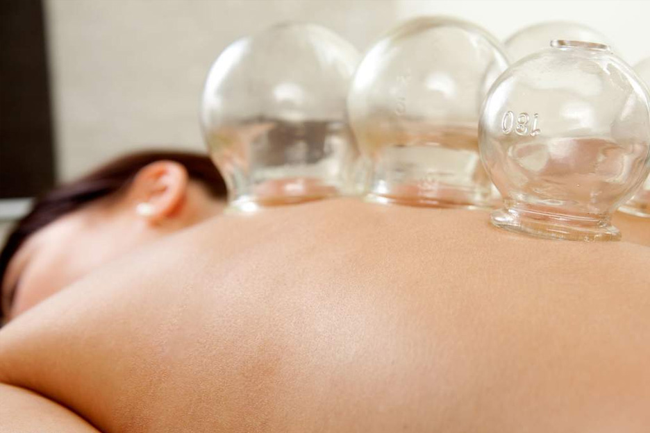 cupping chinese